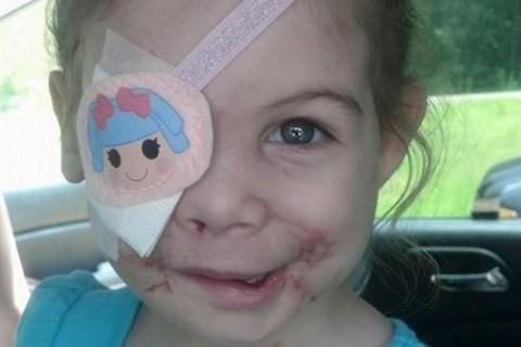 Pequeña que perdió su ojo es expulsada en local de comida rápida