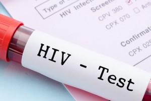 Día Mundial contra el VIH: el mal panorama para los hombres chilenos