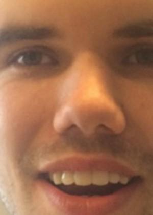 [FOTO] Hombre termina con la cabeza desfigurada tras teñirse el pelo
