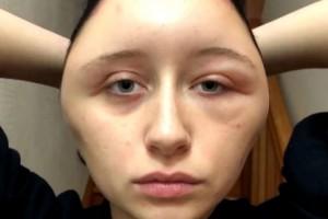 [VIDEO] Mujer sufre terrible deformación facial por teñirse el pelo