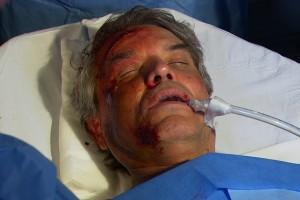 ¡Federico sufrió un terrible accidente!